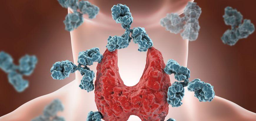 Boli autoimune artrita reumatoida